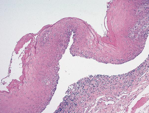 天性 水疱 後 症 表皮